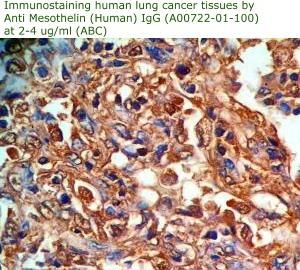 anti mesothelin antibody
